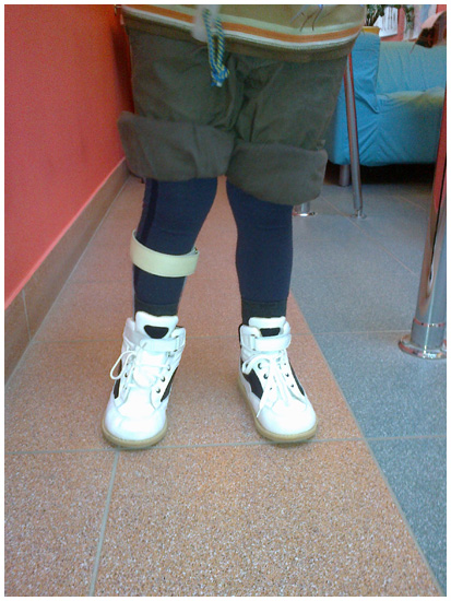 Buty ortopedyczne Ortoped wykonywane na miarę